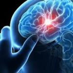Mengenal Penyebab, Gejala Dan Cara Pencegahan Penyakit Stroke