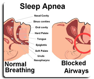 Sleep Apnea: Ngorok